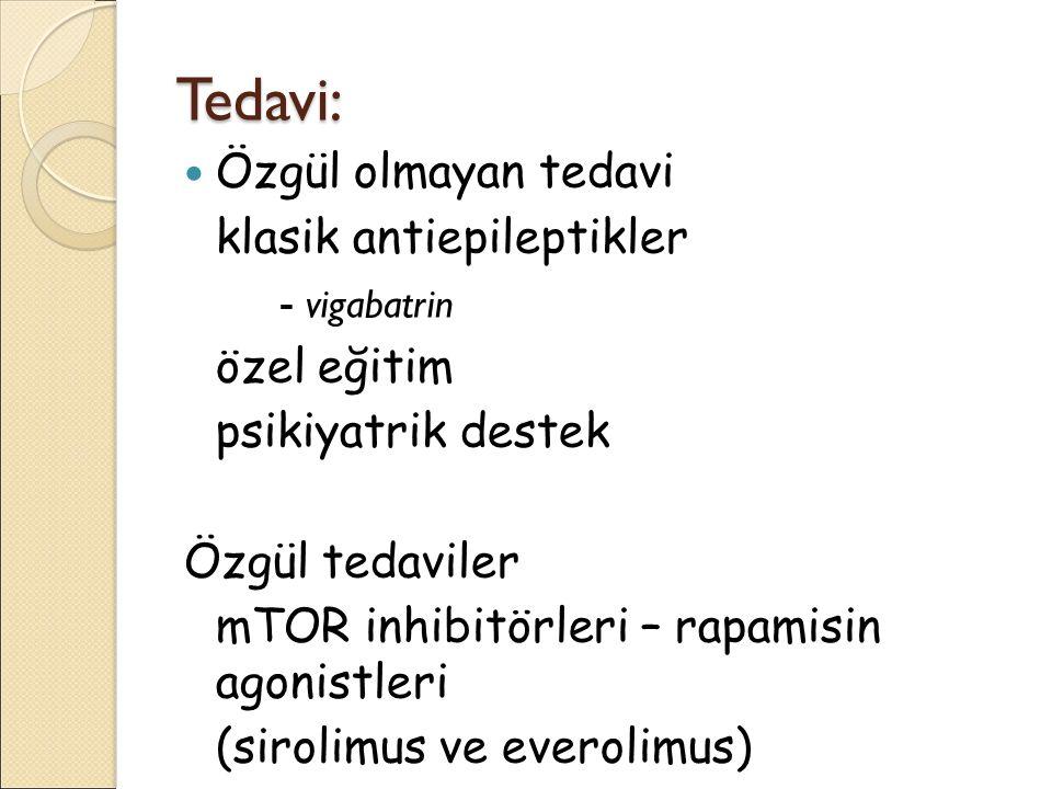 Tedavi: Özgül olmayan tedavi klasik antiepileptikler - vigabatrin