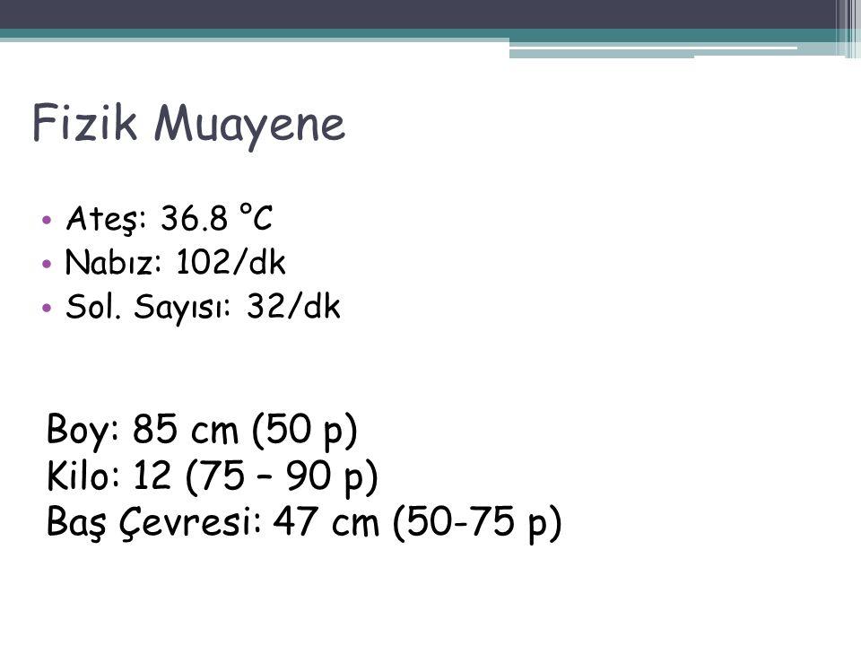 Fizik Muayene Boy: 85 cm (50 p) Kilo: 12 (75 – 90 p)