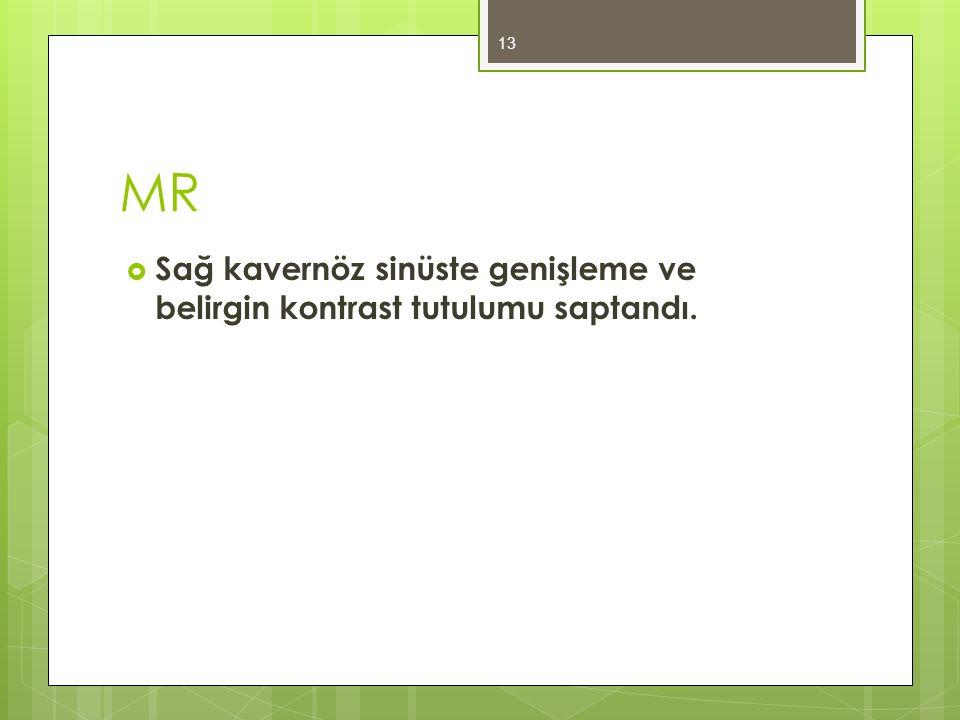 MR Sağ kavernöz sinüste genişleme ve belirgin kontrast tutulumu saptandı.