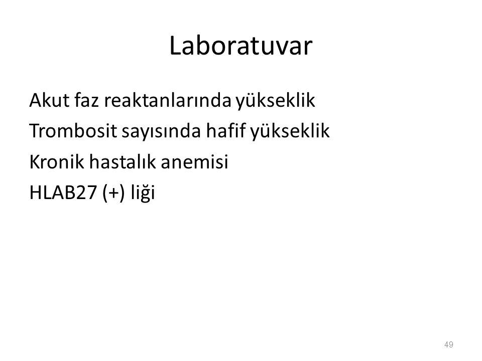 Laboratuvar Akut faz reaktanlarında yükseklik Trombosit sayısında hafif yükseklik Kronik hastalık anemisi HLAB27 (+) liği