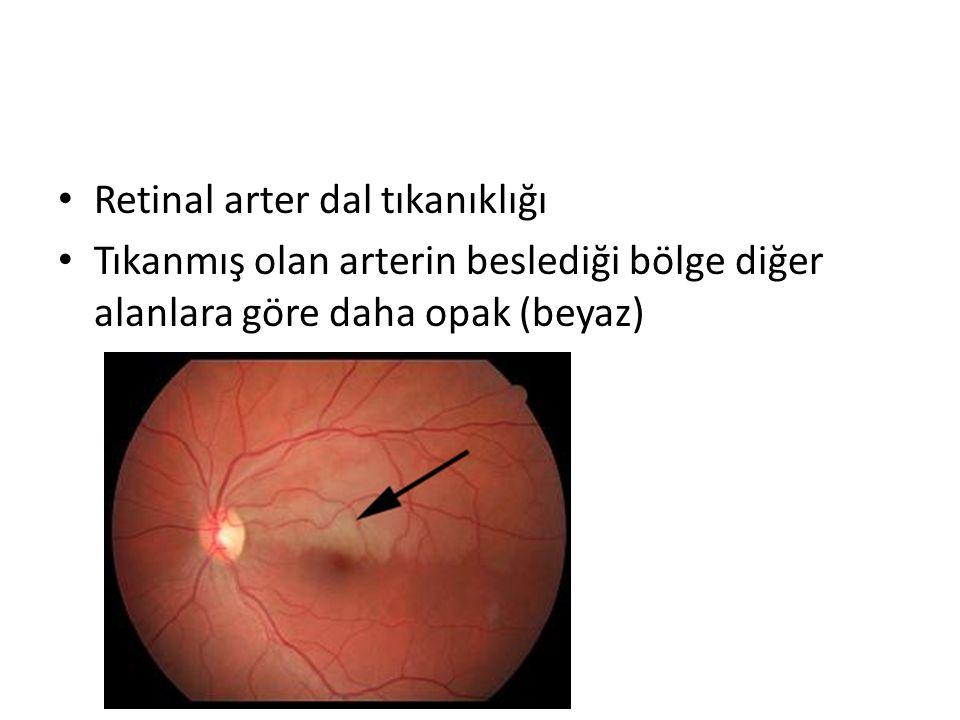 Retinal arter dal tıkanıklığı