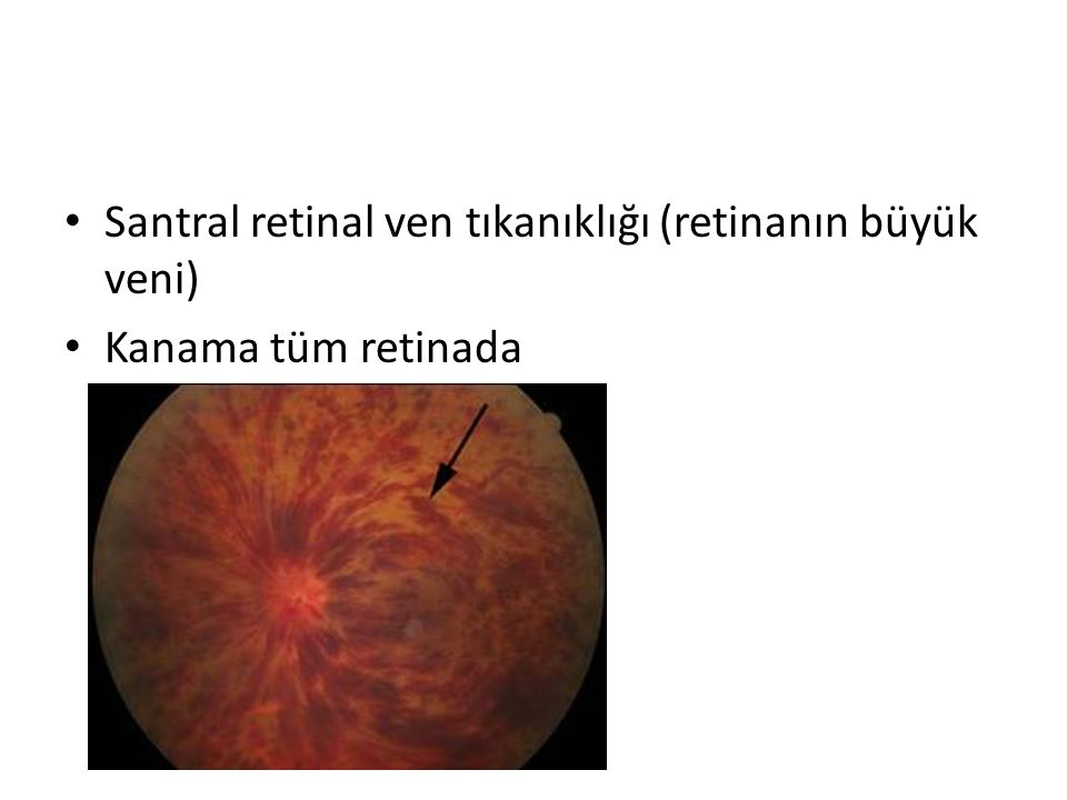 Santral retinal ven tıkanıklığı (retinanın büyük veni)