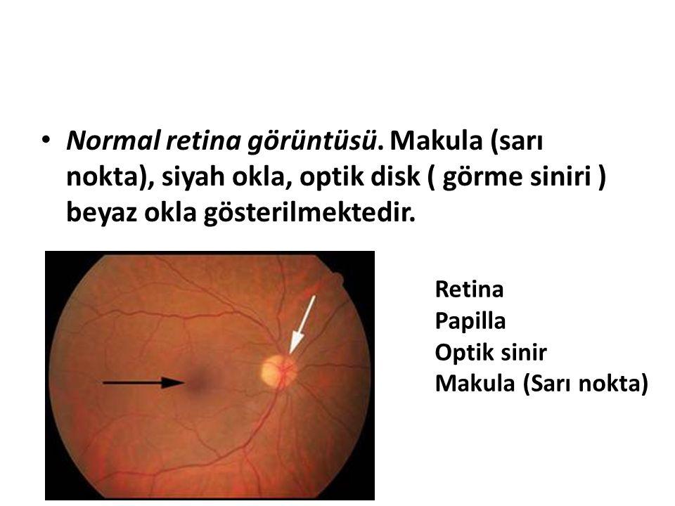 Normal retina görüntüsü