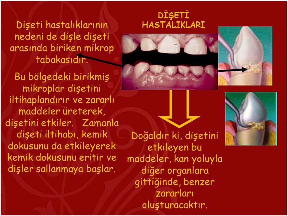 Dişeti hastalıklarının nedeni de dişle dişeti arasında biriken mikrop tabakasıdır.