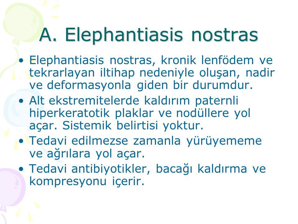 A. Elephantiasis nostras