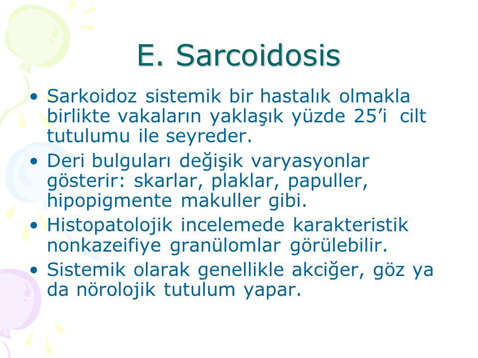 E. Sarcoidosis Sarkoidoz sistemik bir hastalık olmakla birlikte vakaların yaklaşık yüzde 25'i cilt tutulumu ile seyreder.