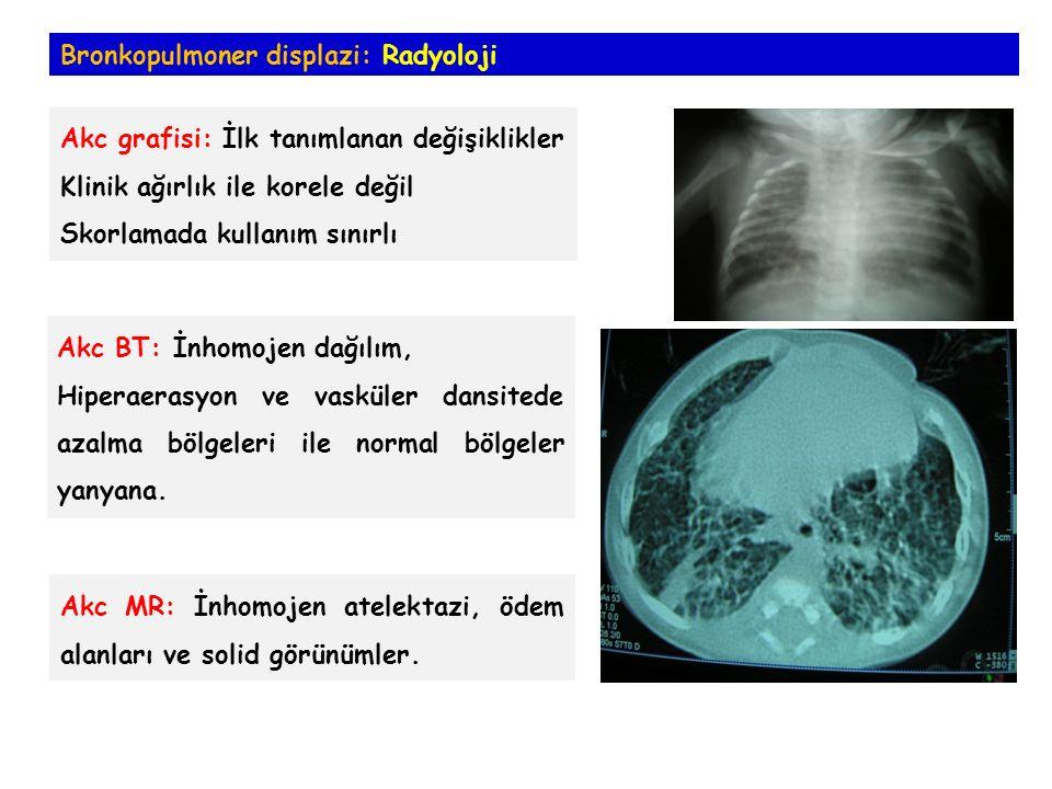 Bronkopulmoner displazi: Radyoloji