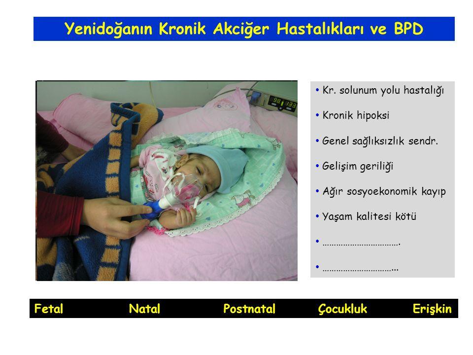 Yenidoğanın Kronik Akciğer Hastalıkları ve BPD