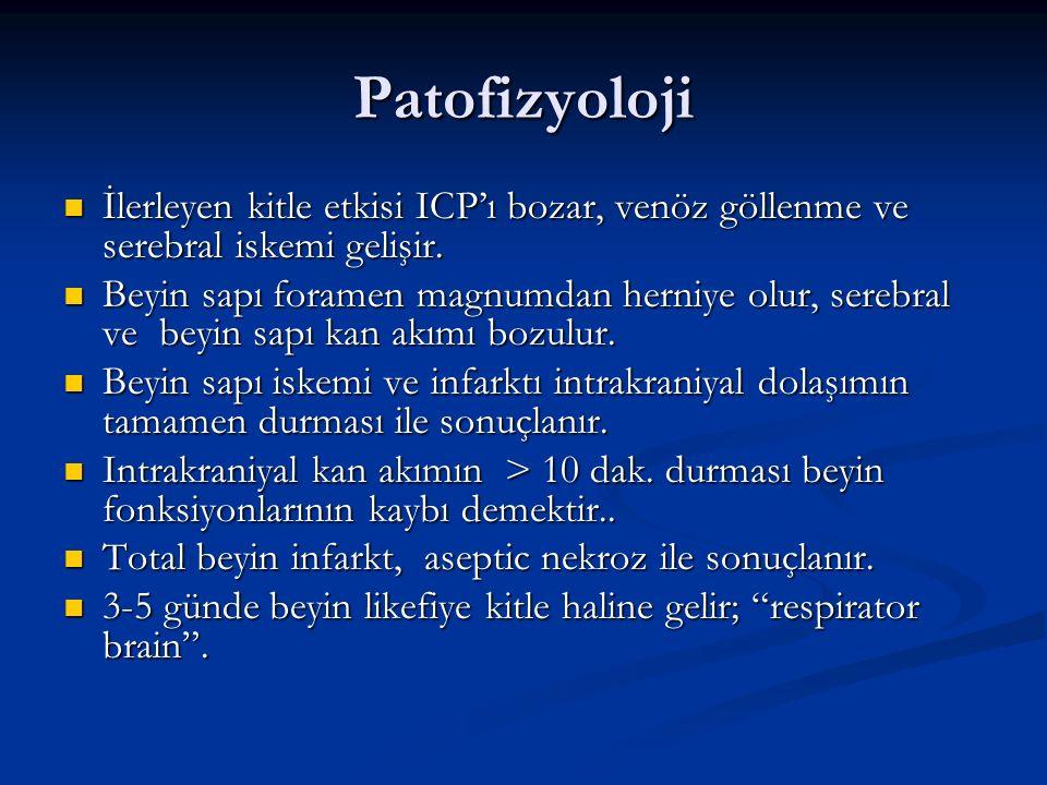 Patofizyoloji İlerleyen kitle etkisi ICP'ı bozar, venöz göllenme ve serebral iskemi gelişir.