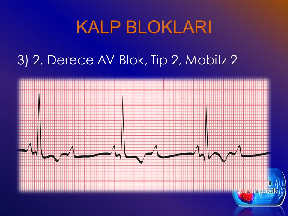 KALP BLOKLARI 3) 2. Derece AV Blok, Tip 2, Mobitz 2 Öğr. Gör.