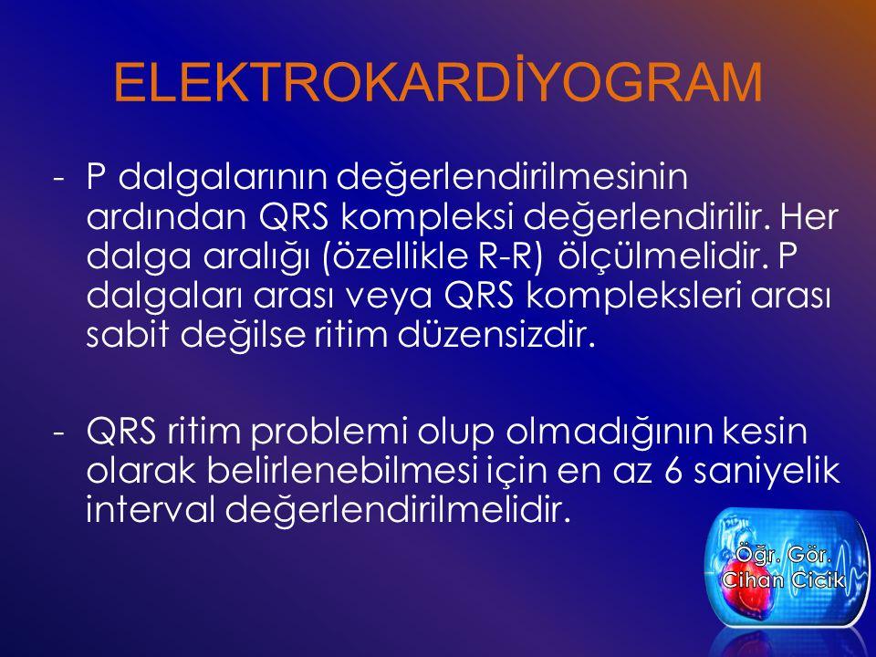 ELEKTROKARDİYOGRAM
