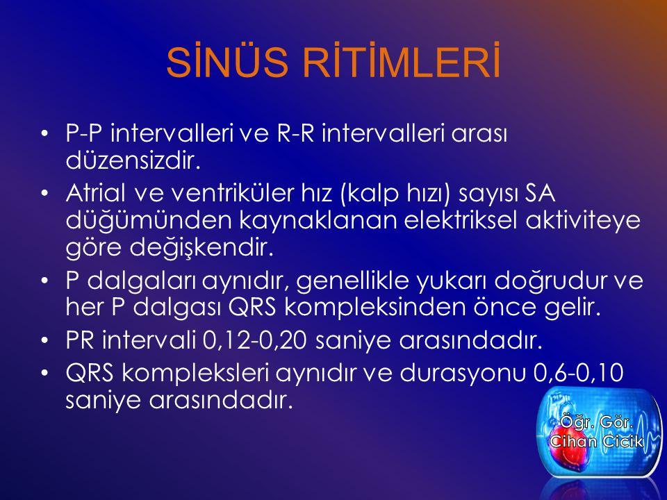 SİNÜS RİTİMLERİ P-P intervalleri ve R-R intervalleri arası düzensizdir.