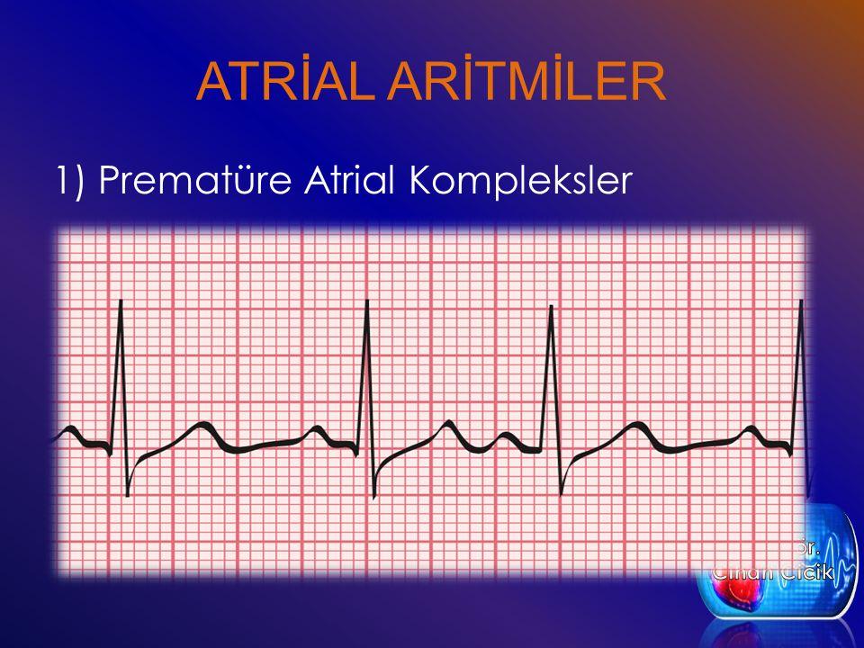 ATRİAL ARİTMİLER 1) Prematüre Atrial Kompleksler Öğr. Gör. Cihan Cicik
