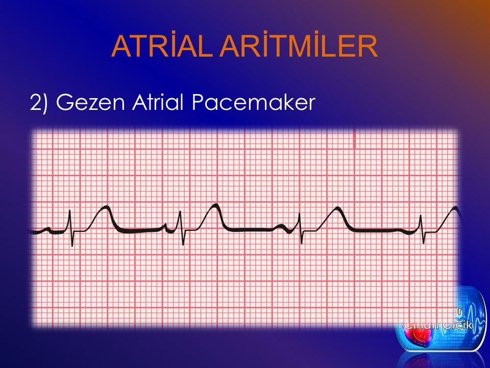 ATRİAL ARİTMİLER 2) Gezen Atrial Pacemaker Öğr. Gör. Cihan Cicik
