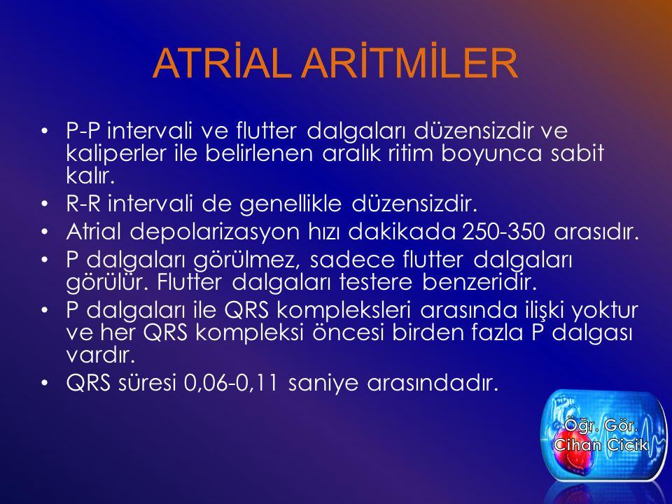ATRİAL ARİTMİLER P-P intervali ve flutter dalgaları düzensizdir ve kaliperler ile belirlenen aralık ritim boyunca sabit kalır.