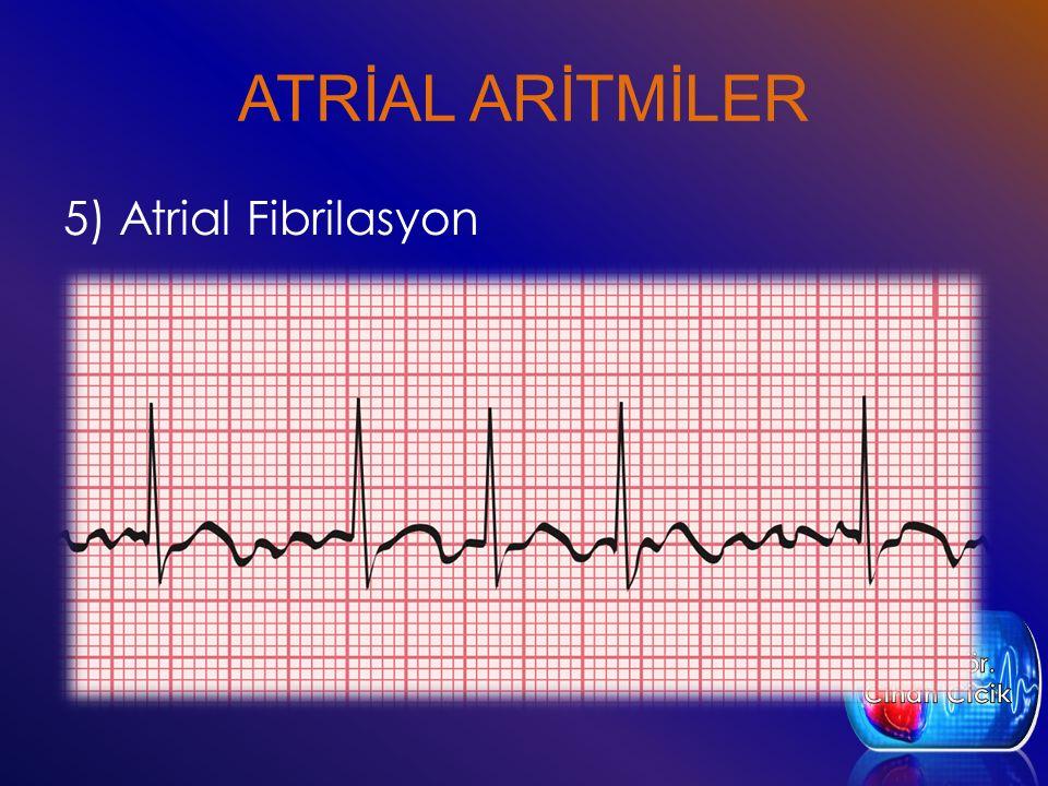 ATRİAL ARİTMİLER 5) Atrial Fibrilasyon Öğr. Gör. Cihan Cicik