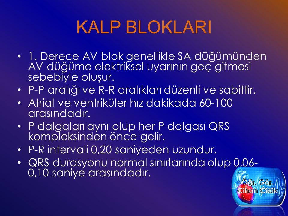 KALP BLOKLARI 1. Derece AV blok genellikle SA düğümünden AV düğüme elektriksel uyarının geç gitmesi sebebiyle oluşur.