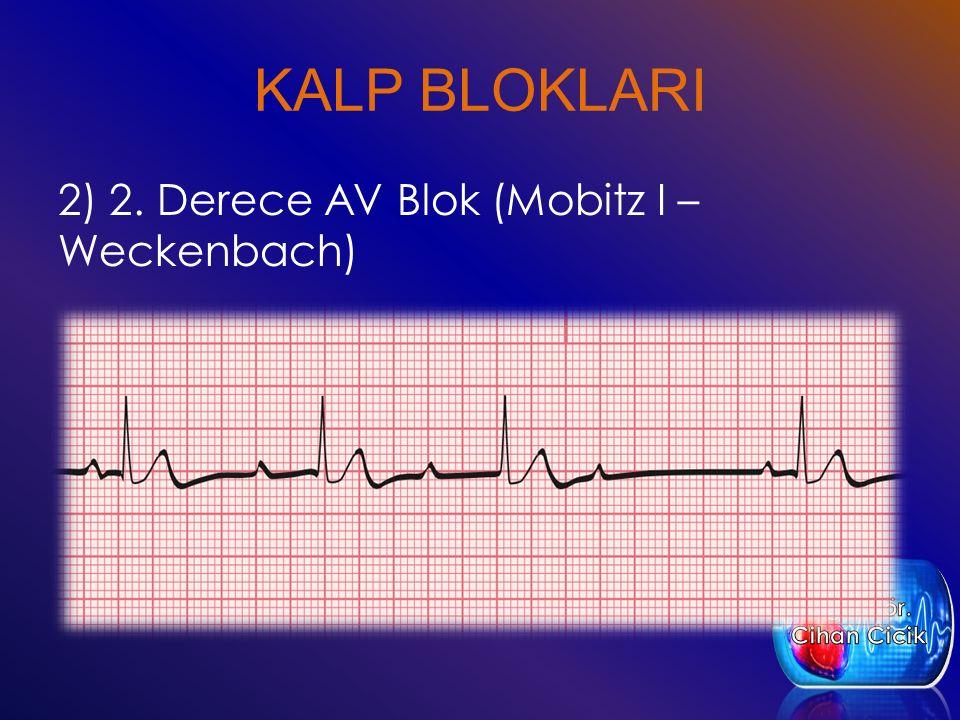 KALP BLOKLARI 2) 2. Derece AV Blok (Mobitz I – Weckenbach) Öğr. Gör.