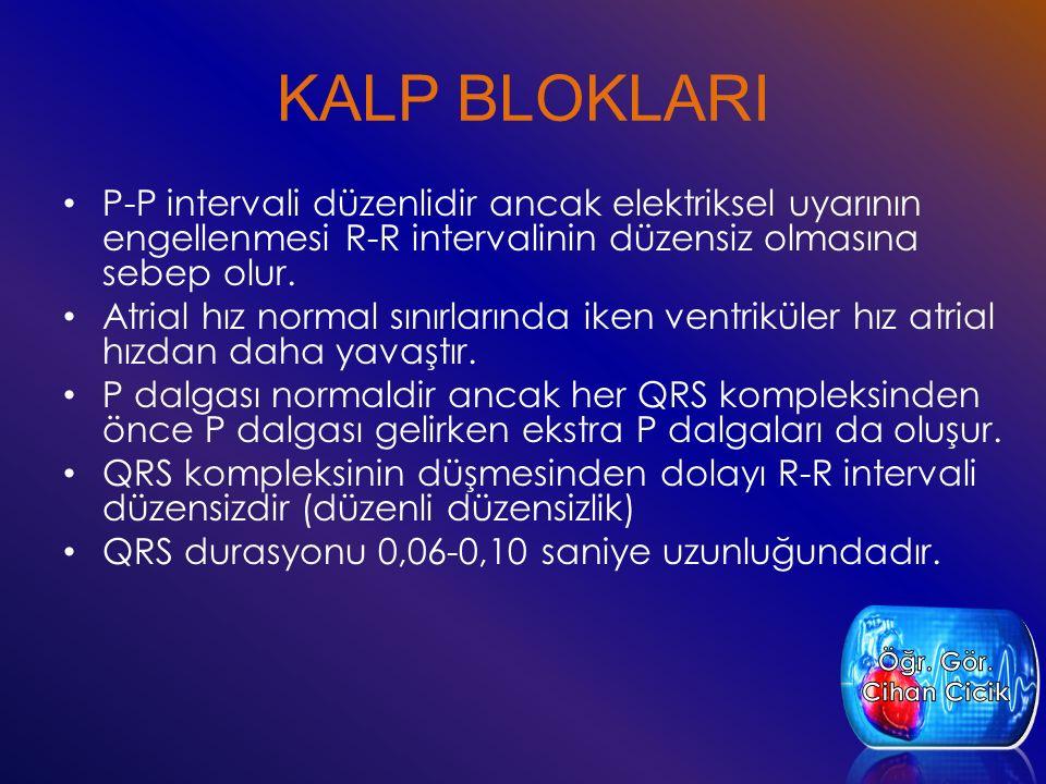 KALP BLOKLARI P-P intervali düzenlidir ancak elektriksel uyarının engellenmesi R-R intervalinin düzensiz olmasına sebep olur.
