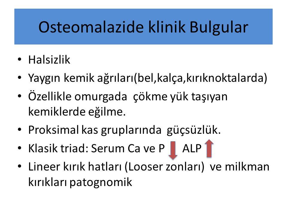 Osteomalazide klinik Bulgular