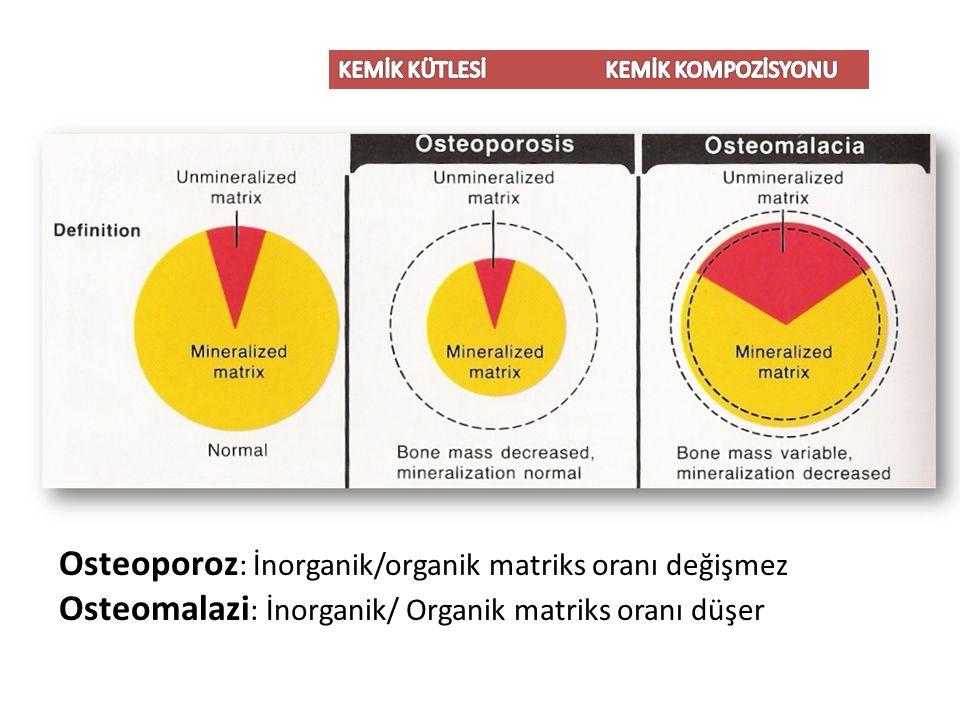 Osteoporoz: İnorganik/organik matriks oranı değişmez