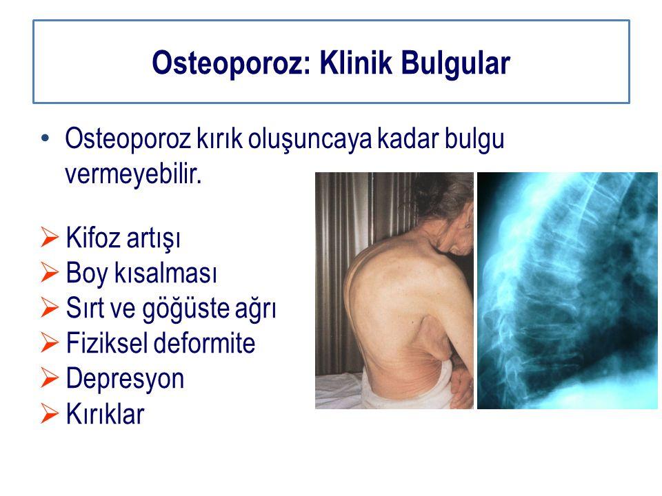 Osteoporoz: Klinik Bulgular