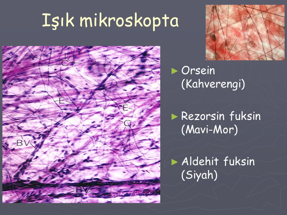 Işık mikroskopta Orsein (Kahverengi) Rezorsin fuksin (Mavi-Mor)