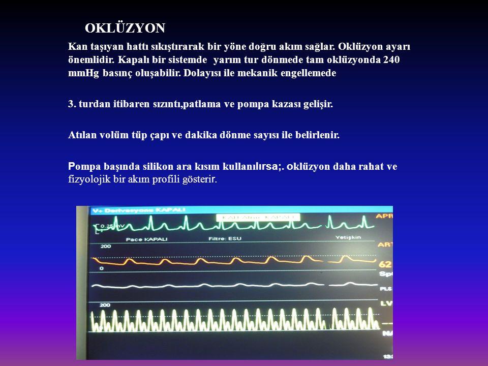 OKLÜZYON