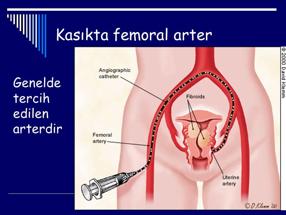 Kasıkta femoral arter Genelde tercih edilen arterdir