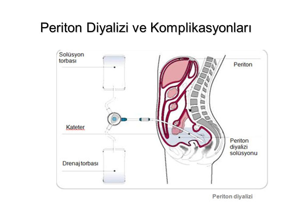 Periton Diyalizi ve Komplikasyonları