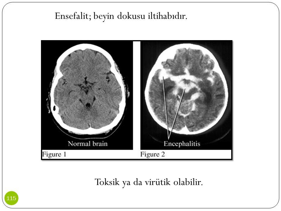Ensefalit; beyin dokusu iltihabıdır.