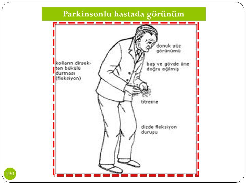 Parkinsonlu hastada görünüm