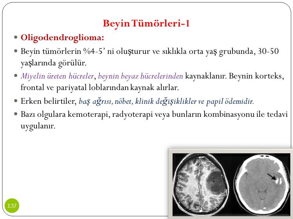 Beyin Tümörleri-1 Oligodendroglioma: