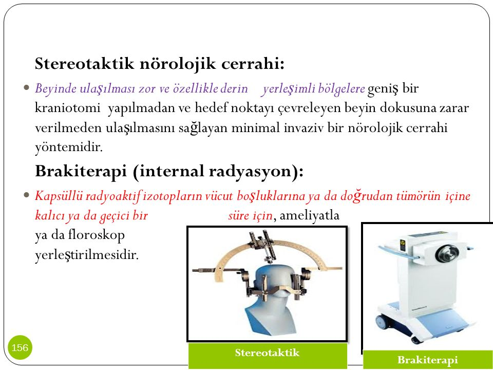 Brakiterapi (internal radyasyon):