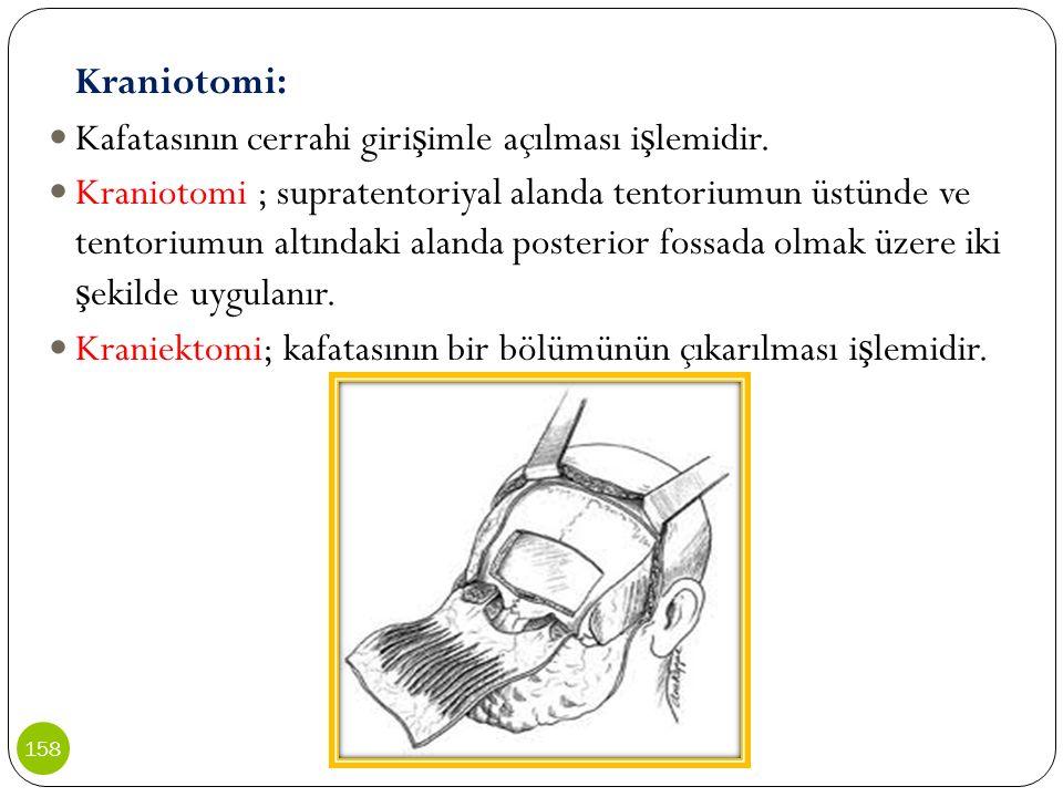Kraniotomi: Kafatasının cerrahi girişimle açılması işlemidir.