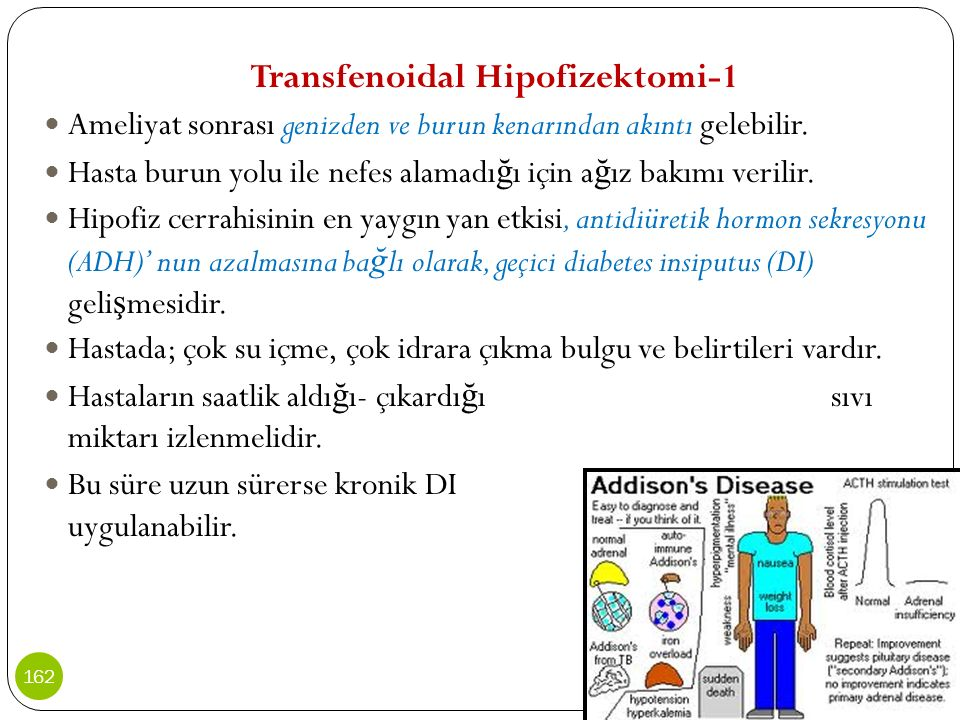 Transfenoidal Hipofizektomi-1