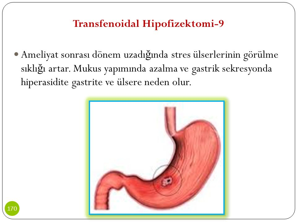 Transfenoidal Hipofizektomi-9
