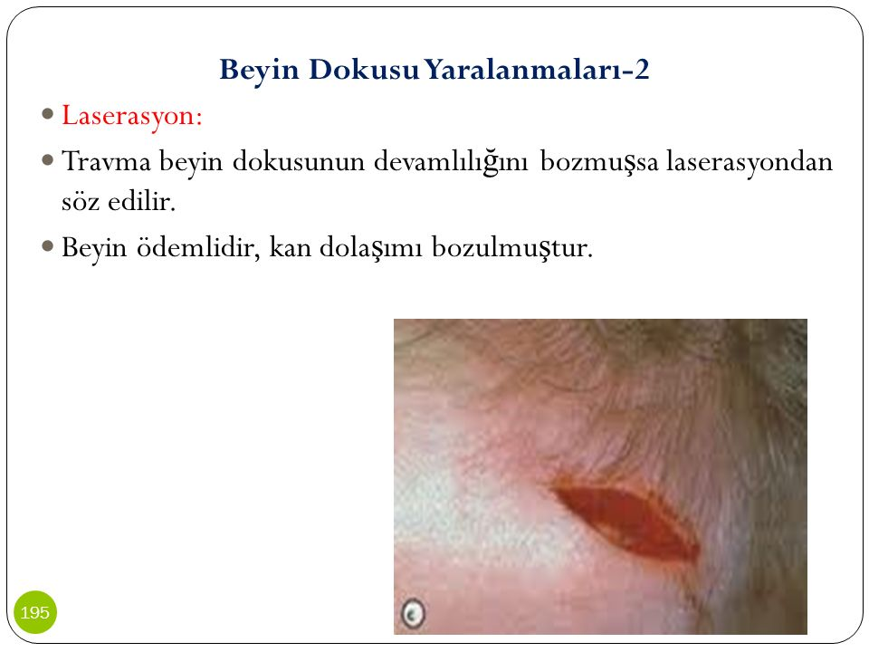 Beyin Dokusu Yaralanmaları-2