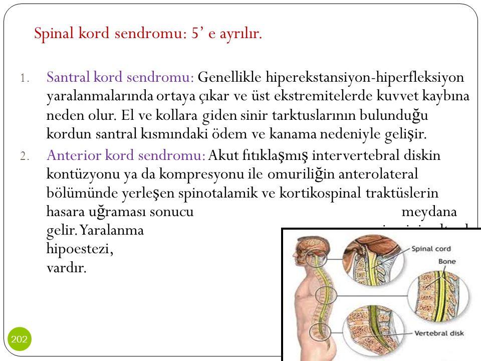 Spinal kord sendromu: 5' e ayrılır.