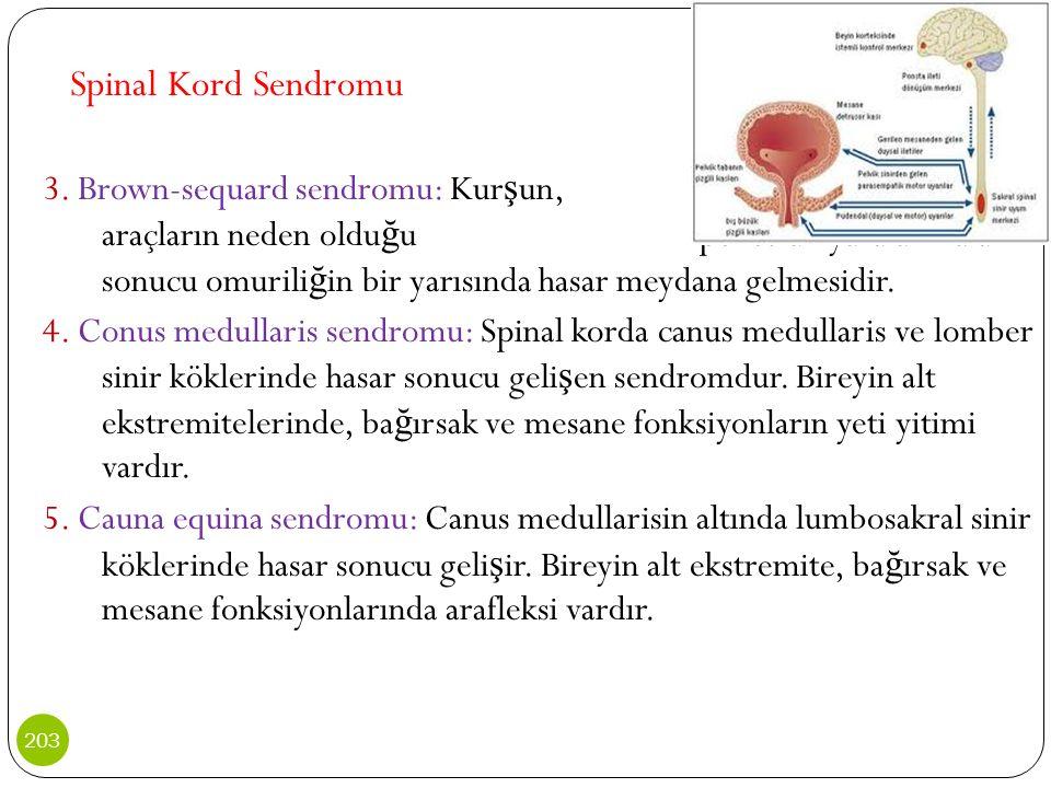 Spinal Kord Sendromu