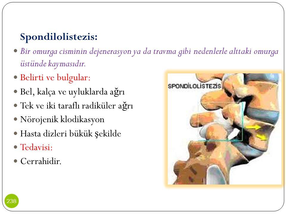 Bel, kalça ve uyluklarda ağrı Tek ve iki taraflı radiküler ağrı