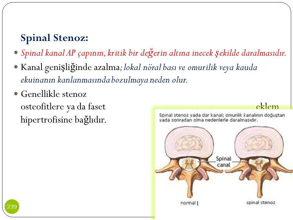 Spinal Stenoz: Spinal kanal AP çapının, kritik bir değerin altına inecek şekilde daralmasıdır.