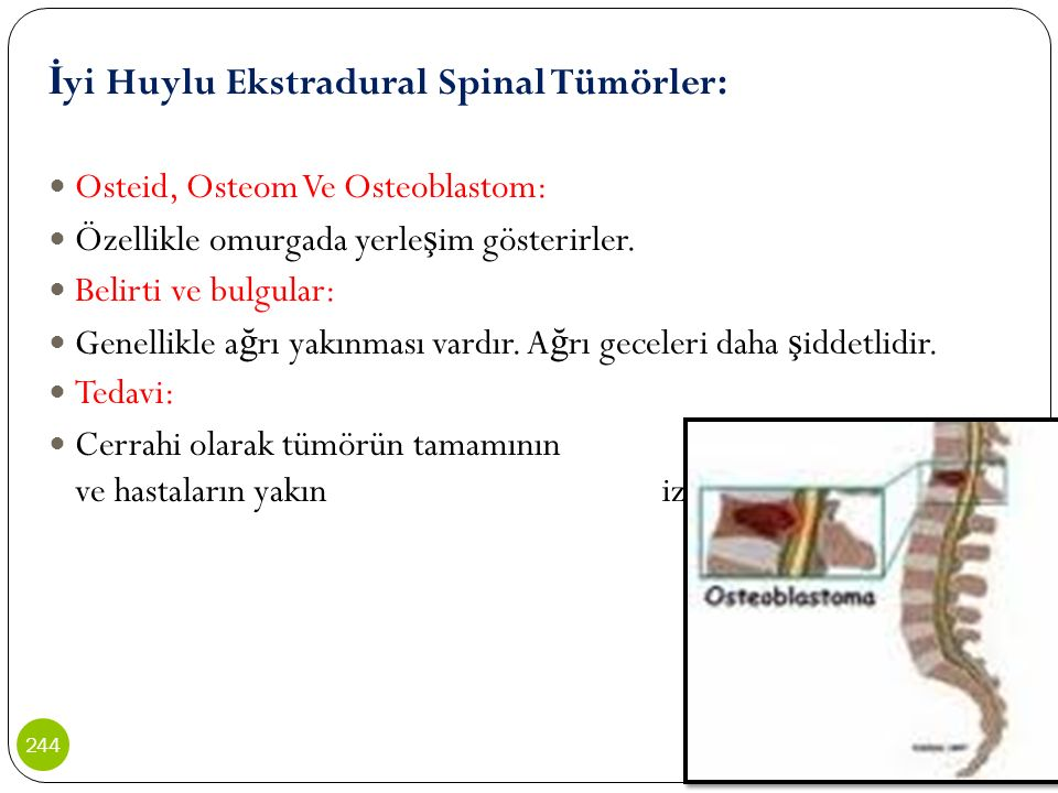 İyi Huylu Ekstradural Spinal Tümörler: