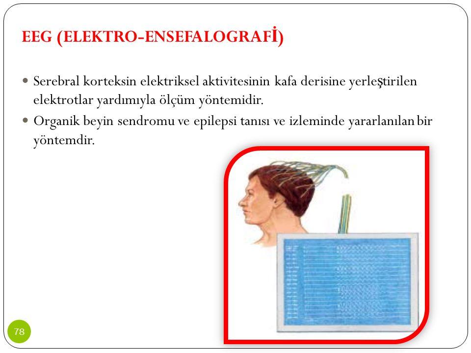 EEG (ELEKTRO-ENSEFALOGRAFİ)