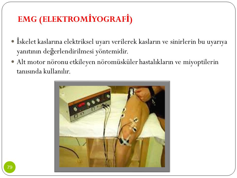 EMG (ELEKTROMİYOGRAFİ)