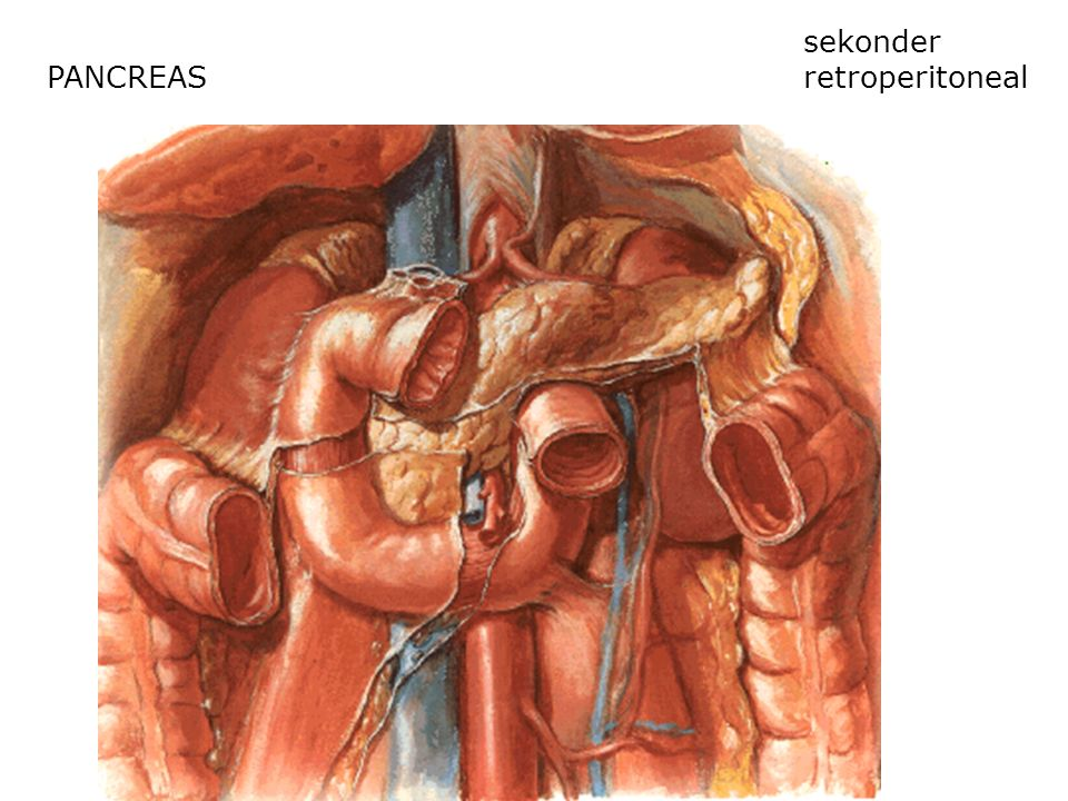 sekonder retroperitoneal PANCREAS