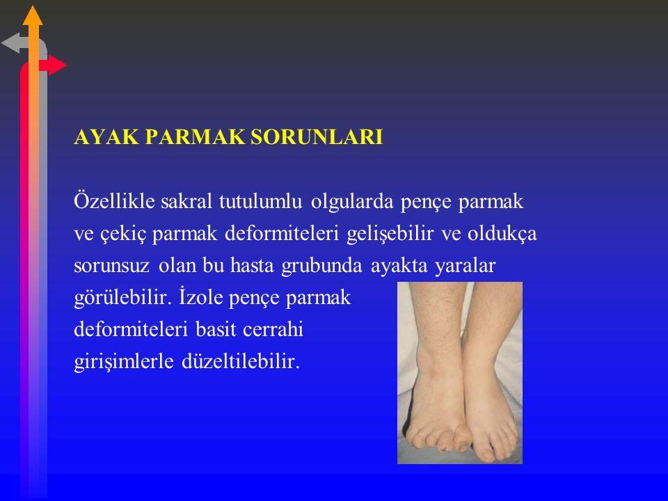 AYAK PARMAK SORUNLARI Özellikle sakral tutulumlu olgularda pençe parmak. ve çekiç parmak deformiteleri gelişebilir ve oldukça.