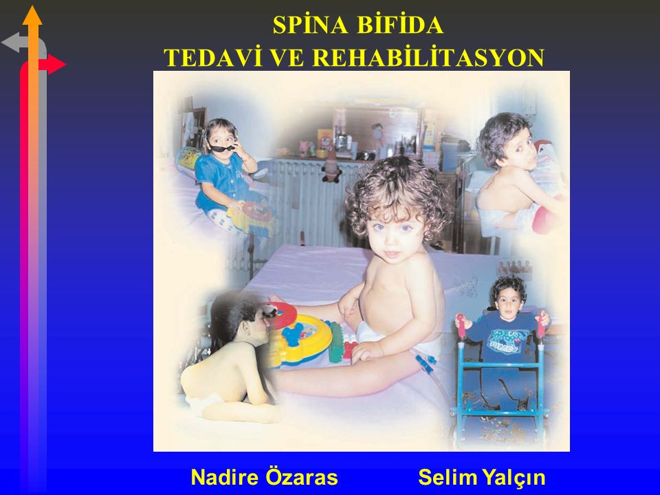 SPİNA BİFİDA TEDAVİ VE REHABİLİTASYON