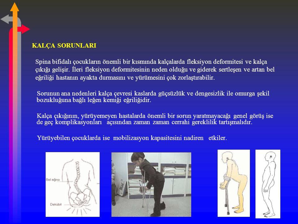 KALÇA SORUNLARI Spina bifidalı çocukların önemli bir kısmında kalçalarda fleksiyon deformitesi ve kalça.