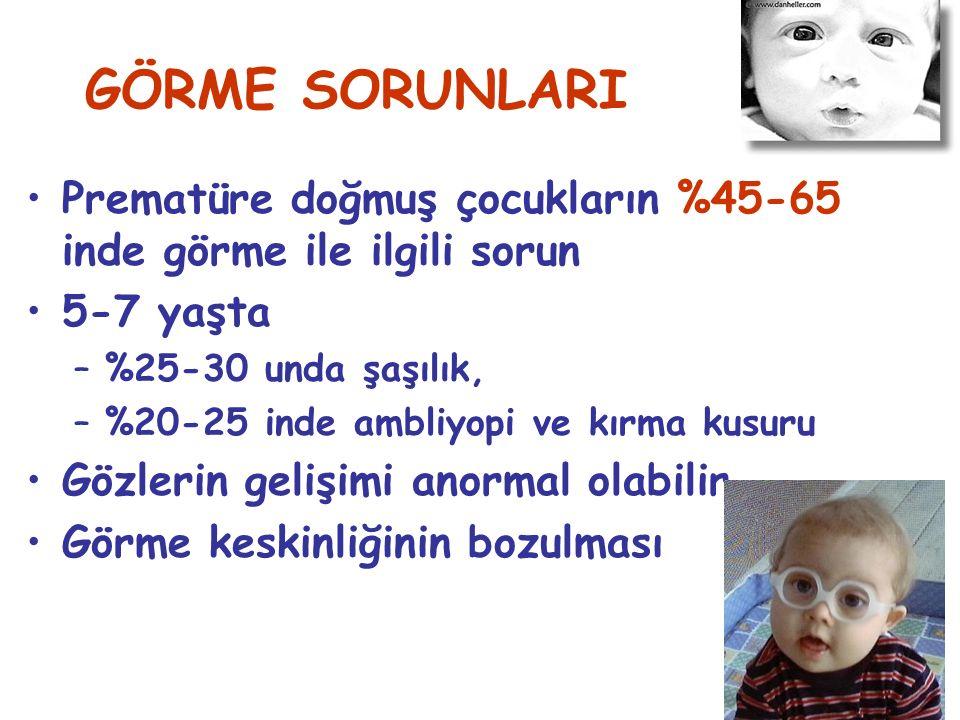 GÖRME SORUNLARI Prematüre doğmuş çocukların %45-65 inde görme ile ilgili sorun. 5-7 yaşta. %25-30 unda şaşılık,